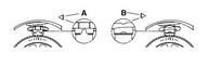 Arc spiral MONROE SP1153